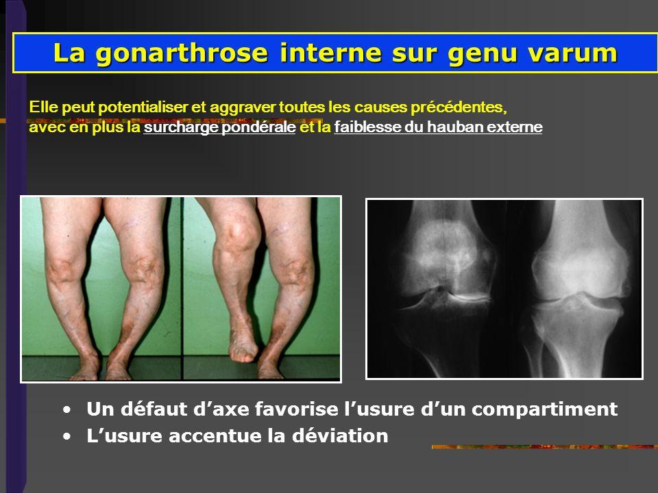 La gonarthrose interne sur genu varum