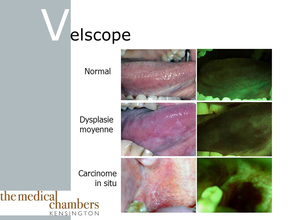 Velscope Normal Dysplasie moyenne Carcinome in situ