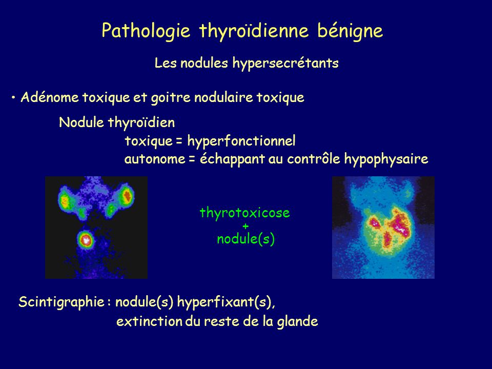 Pathologie thyroïdienne bénigne
