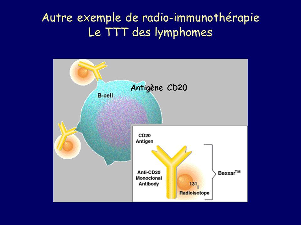 Autre exemple de radio-immunothérapie