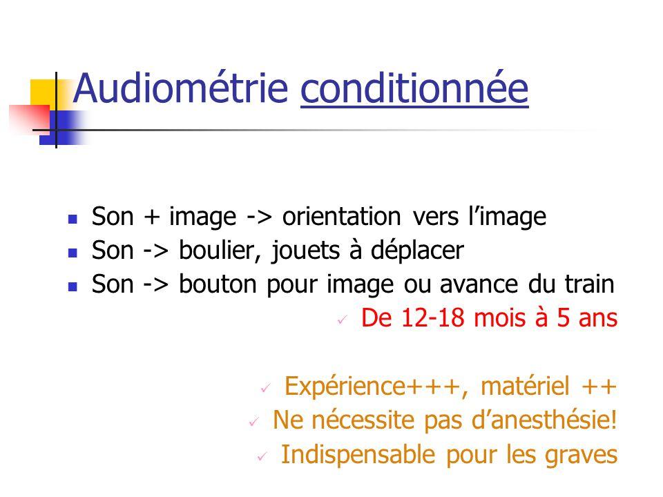 Audiométrie conditionnée