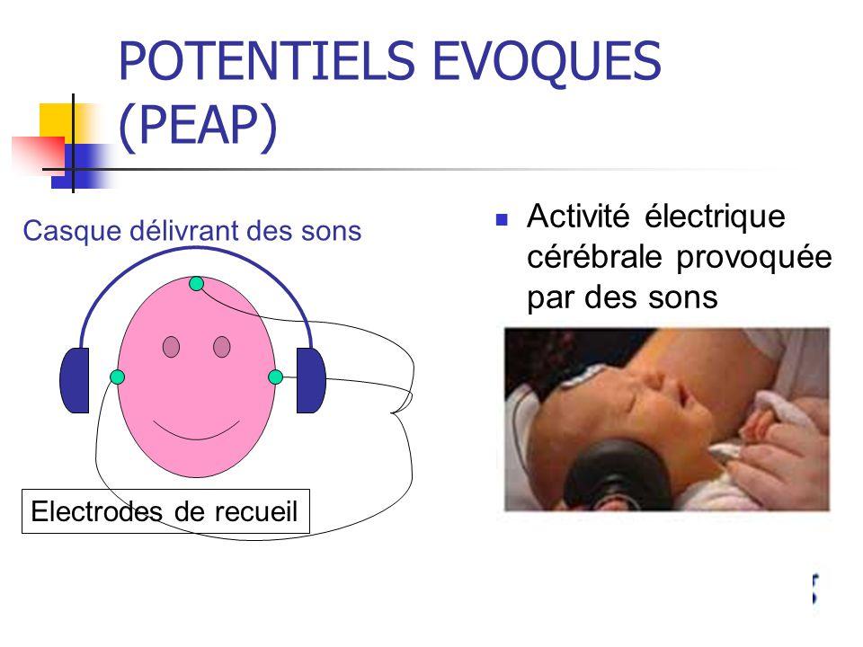 POTENTIELS EVOQUES (PEAP)