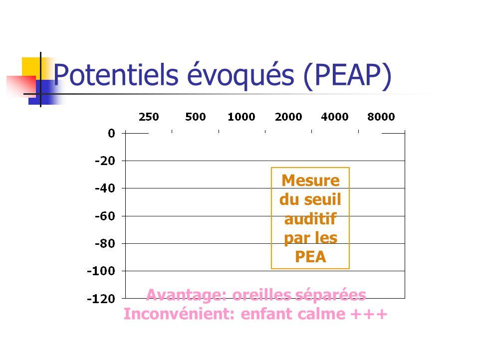 Potentiels évoqués (PEAP)