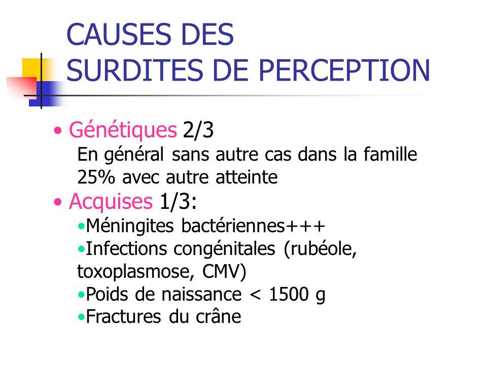CAUSES DES SURDITES DE PERCEPTION