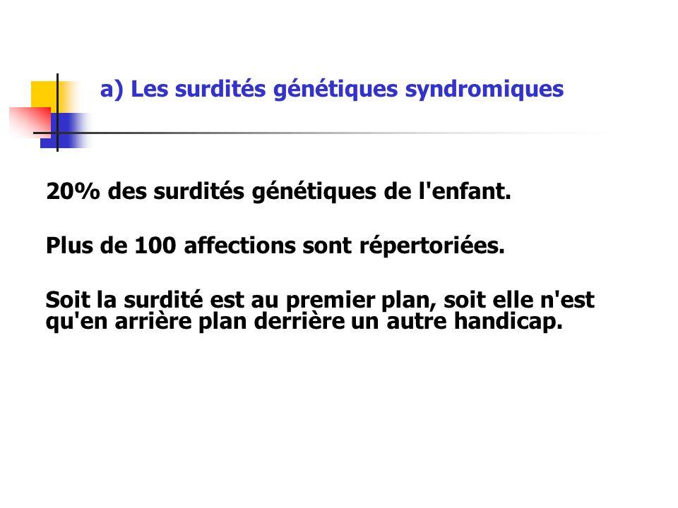 a) Les surdités génétiques syndromiques