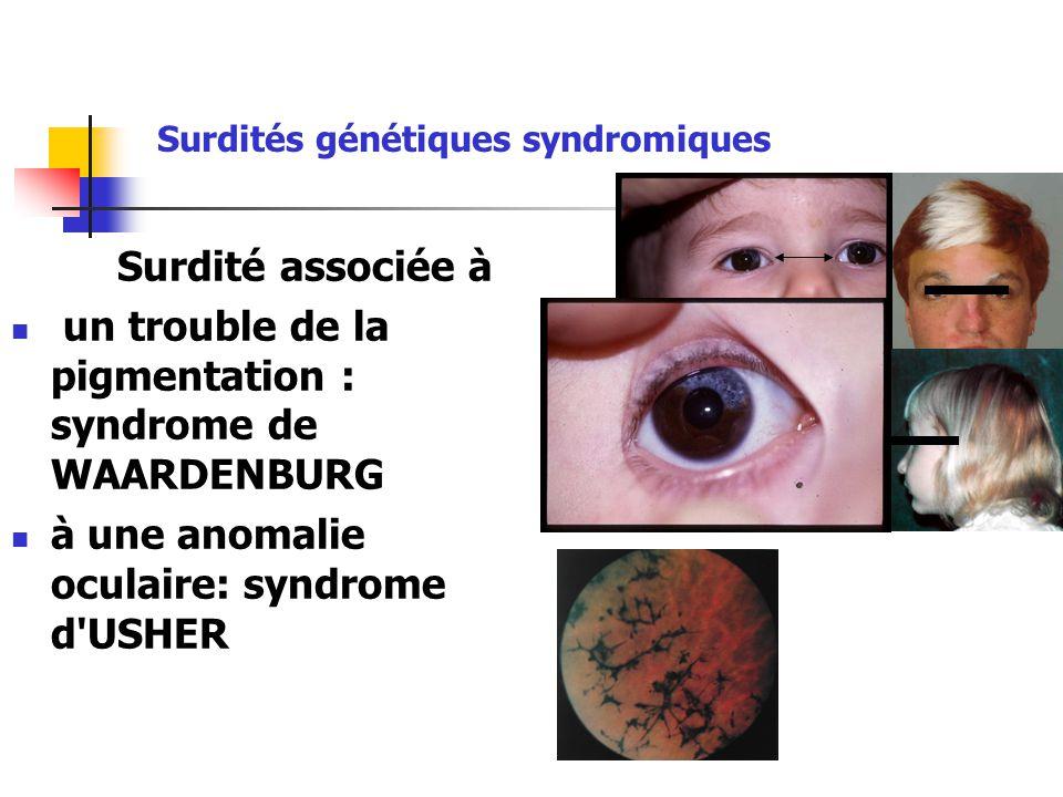 un trouble de la pigmentation : syndrome de WAARDENBURG