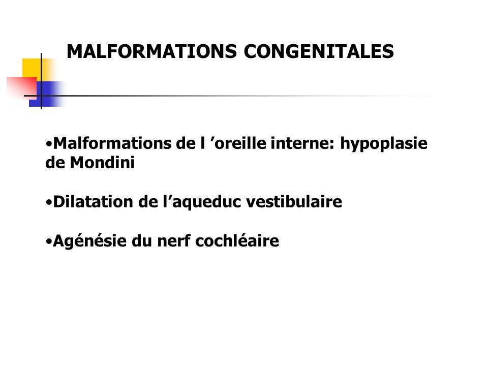 MALFORMATIONS CONGENITALES