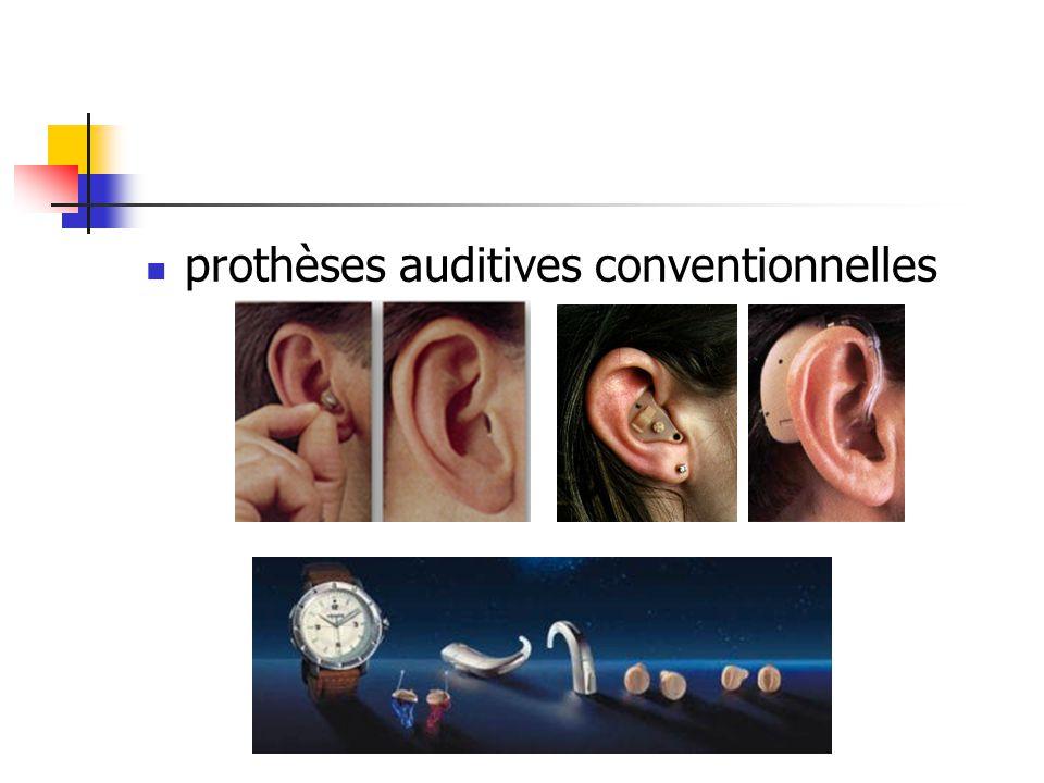 prothèses auditives conventionnelles