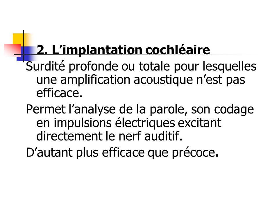 2. L'implantation cochléaire