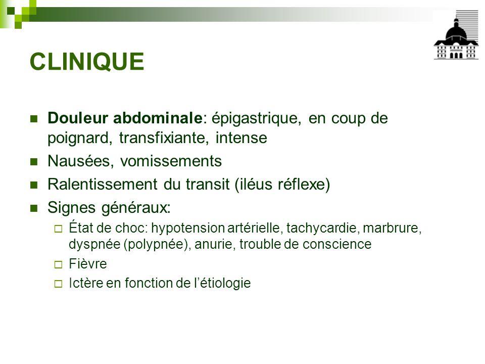 CLINIQUE Douleur abdominale: épigastrique, en coup de poignard, transfixiante, intense. Nausées, vomissements.