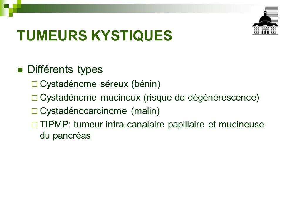 TUMEURS KYSTIQUES Différents types Cystadénome séreux (bénin)