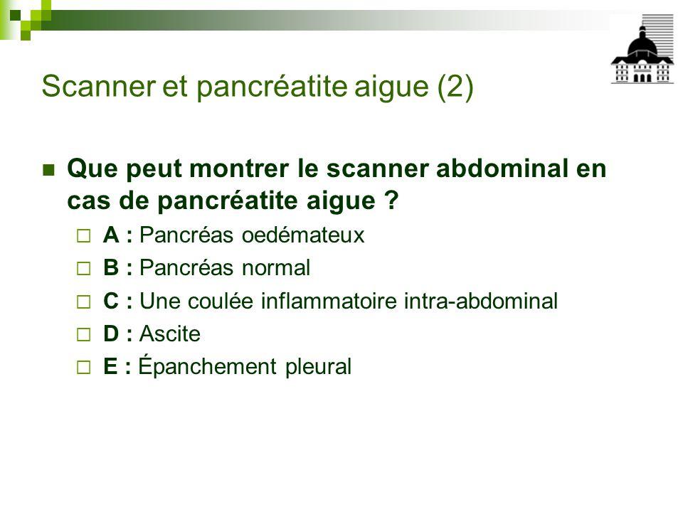 Scanner et pancréatite aigue (2)