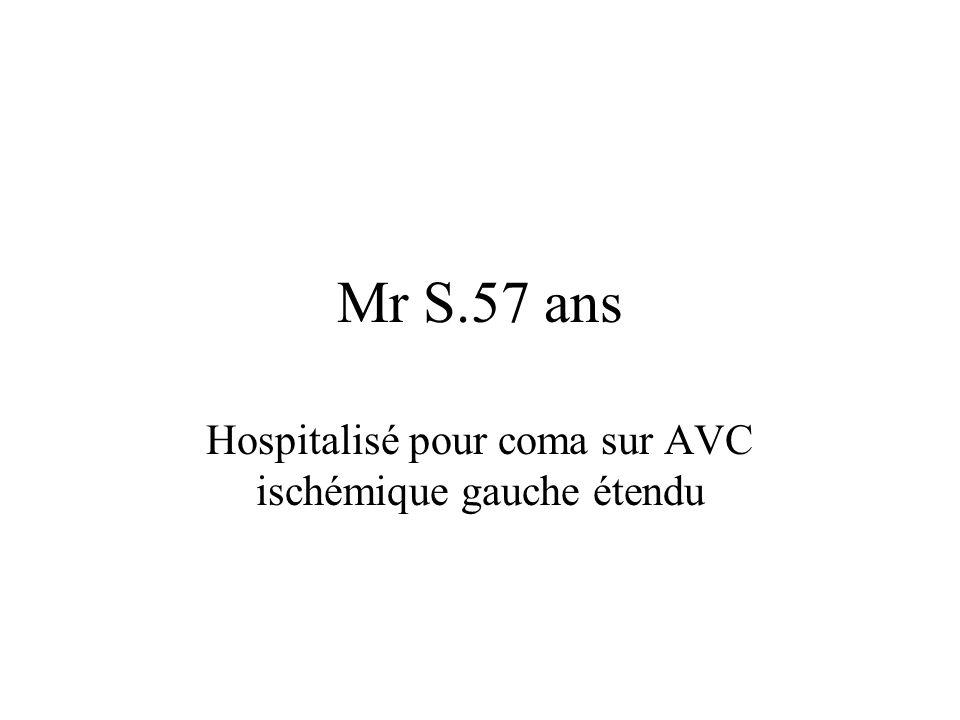 Hospitalisé pour coma sur AVC ischémique gauche étendu