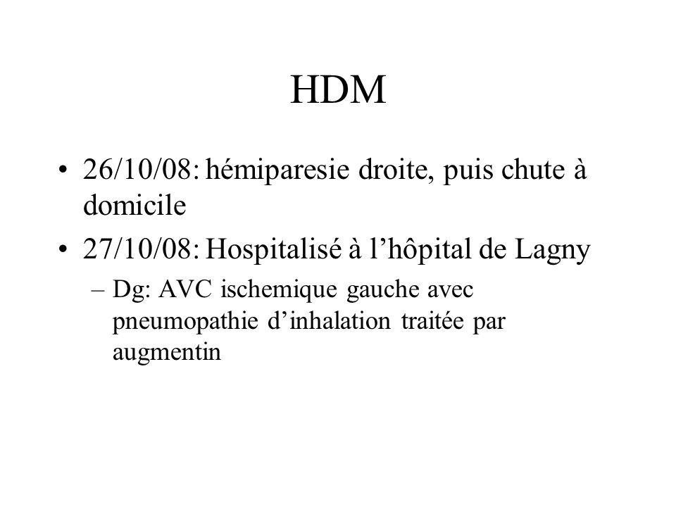 HDM 26/10/08: hémiparesie droite, puis chute à domicile