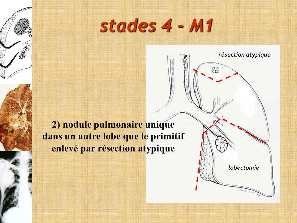 stades 4 - M1 2) nodule pulmonaire unique