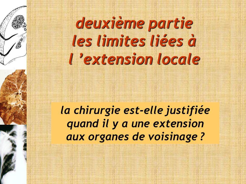 deuxième partie les limites liées à l 'extension locale