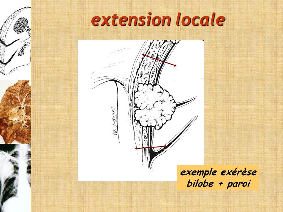 extension locale exemple exérèse bilobe + paroi