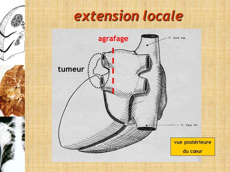 extension locale agrafage tumeur vue postérieure du cœur