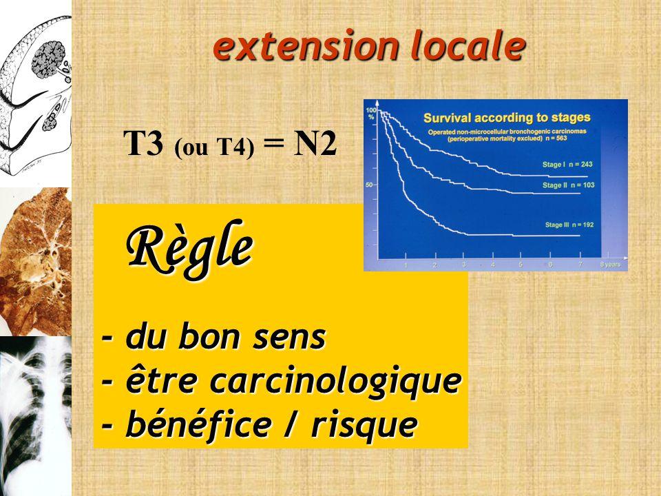 Règle extension locale T3 (ou T4) = N2 - du bon sens