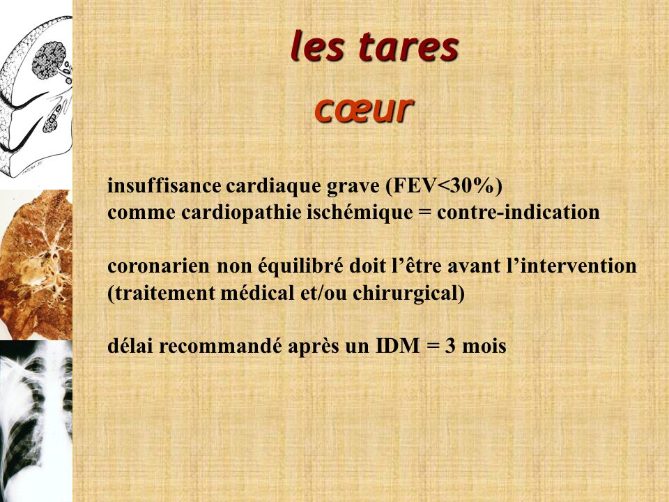 les tares cœur insuffisance cardiaque grave (FEV<30%)