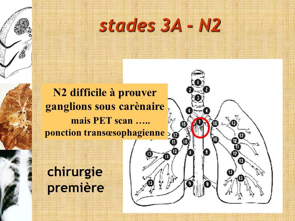 ganglions sous carènaire ponction transœsophagienne