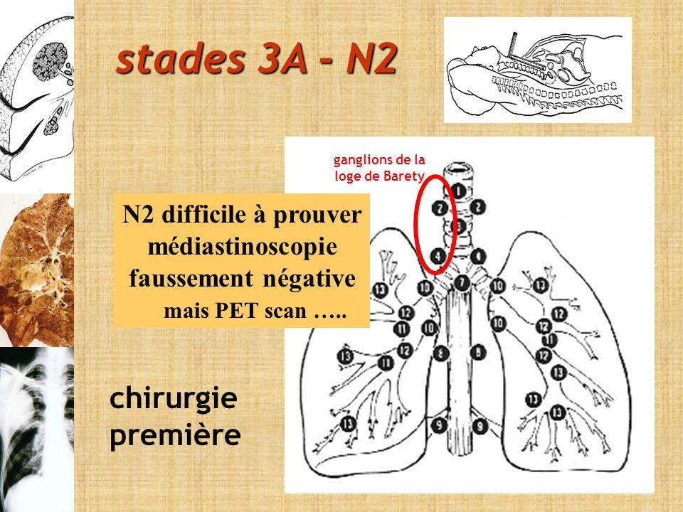 stades 3A - N2 chirurgie première N2 difficile à prouver