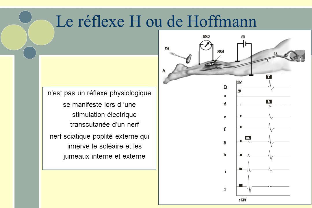 Le réflexe H ou de Hoffmann