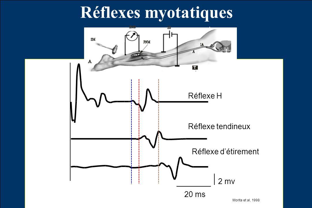 Réflexes myotatiques Réflexe H Réflexe tendineux Réflexe d'étirement