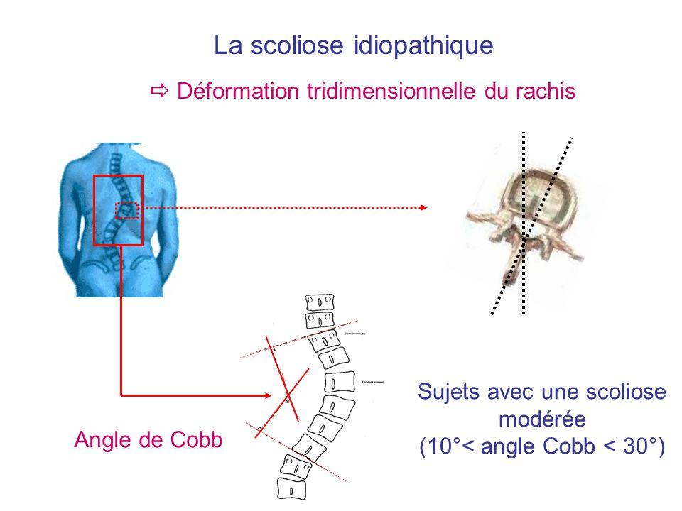 La scoliose idiopathique
