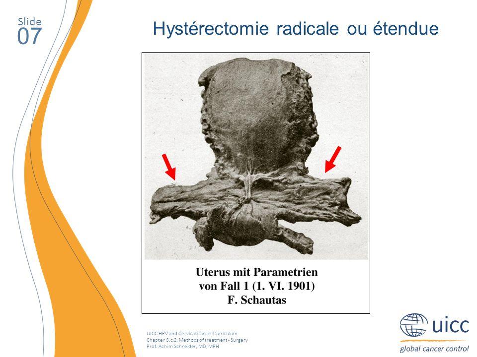 07 Hystérectomie radicale ou étendue Slide
