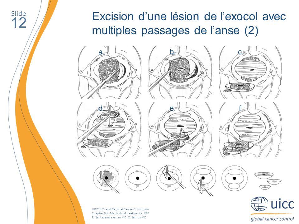 Slide Excision d'une lésion de l'exocol avec multiples passages de l'anse (2) 12. a. b. c. d. e.