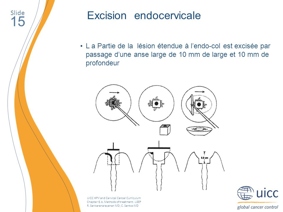 15 Excision endocervicale Slide