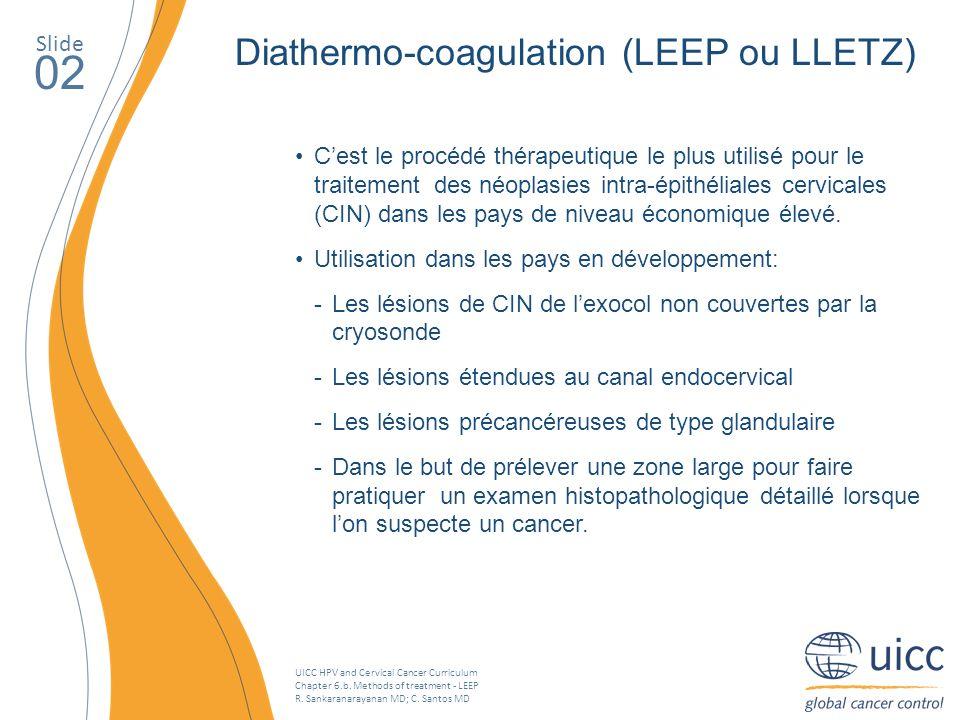 02 Diathermo-coagulation (LEEP ou LLETZ) Slide