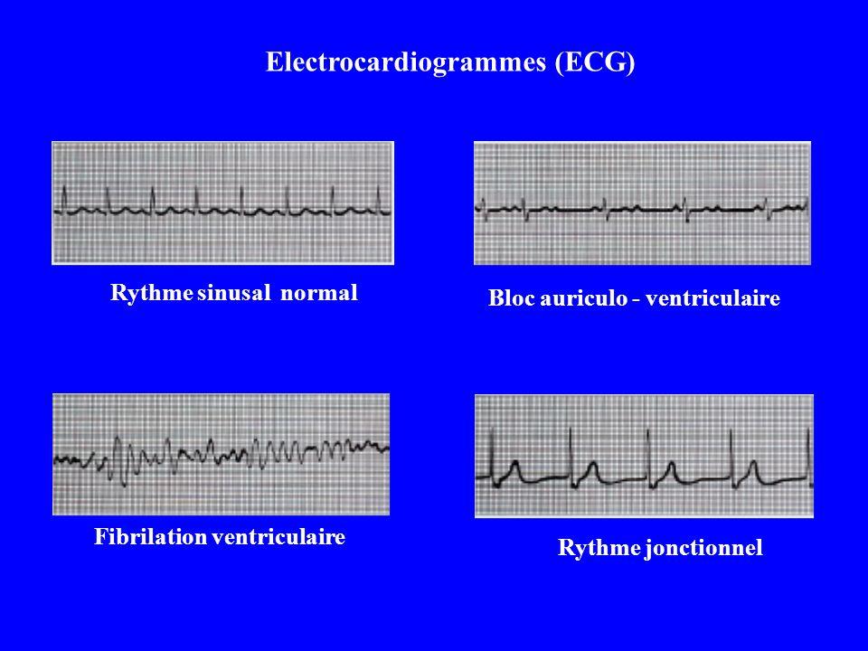 Electrocardiogrammes (ECG)