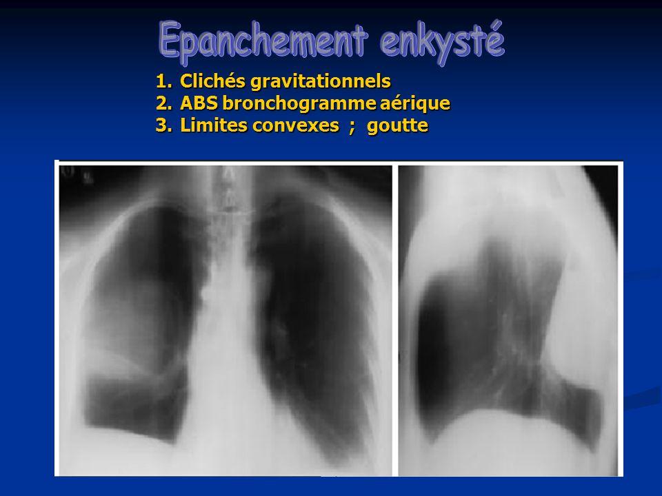 Epanchement enkysté Clichés gravitationnels ABS bronchogramme aérique