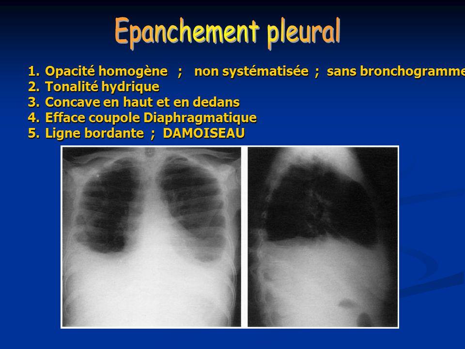 Epanchement pleural Opacité homogène ; non systématisée ; sans bronchogramme. Tonalité hydrique.