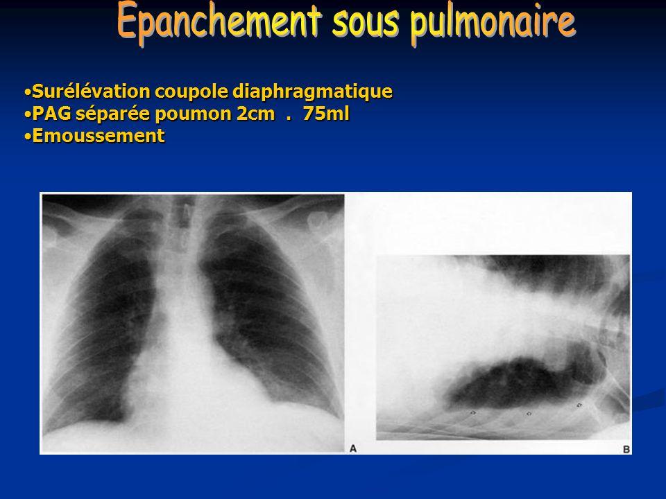 Epanchement sous pulmonaire