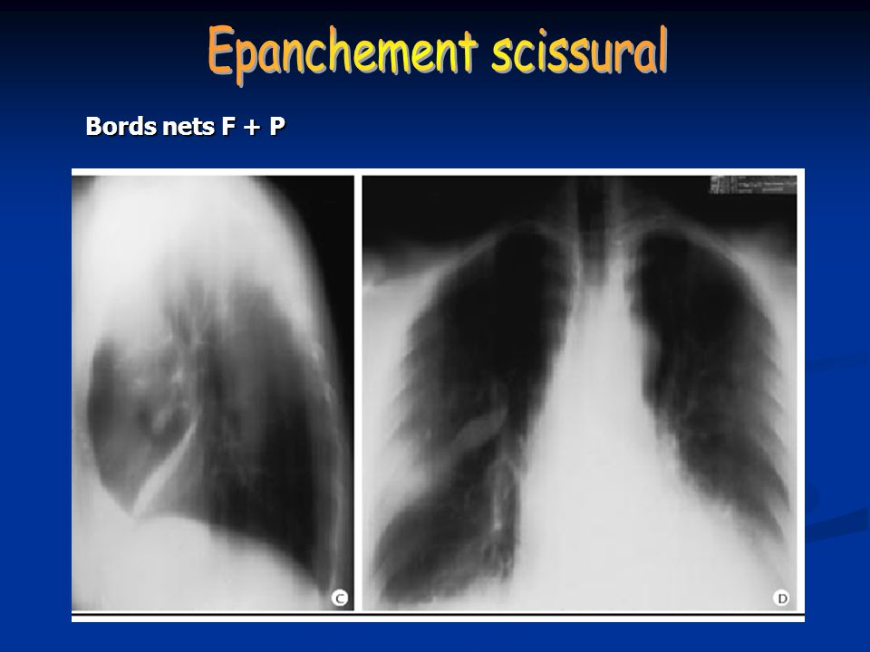 Epanchement scissural