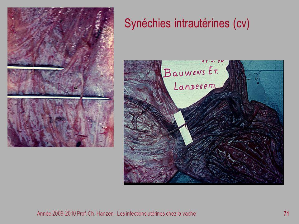 Synéchies intrautérines (cv)