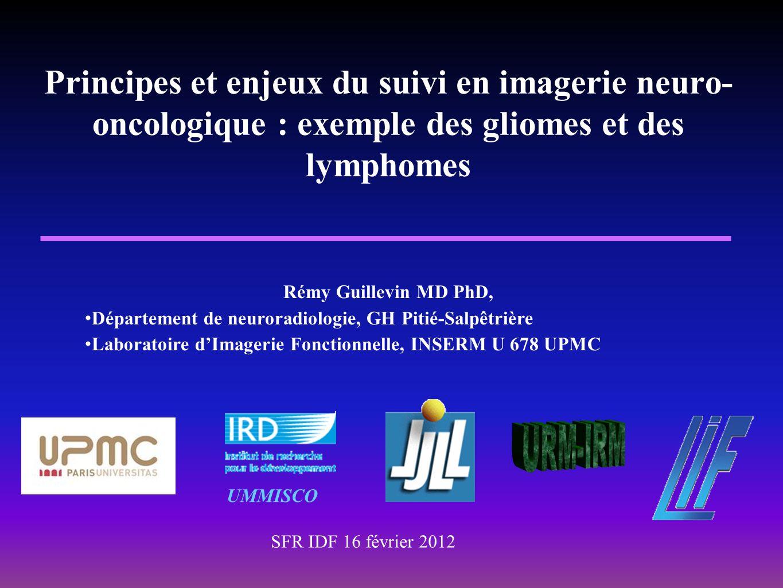 Principes et enjeux du suivi en imagerie neuro-oncologique : exemple des gliomes et des lymphomes