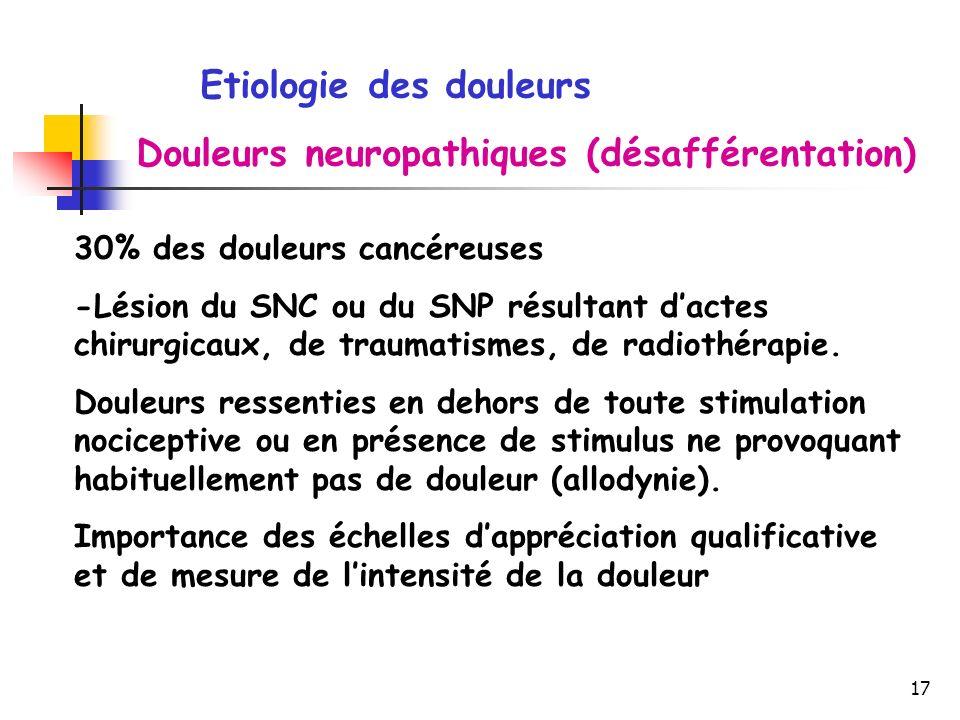 Etiologie des douleurs Douleurs neuropathiques (désafférentation)