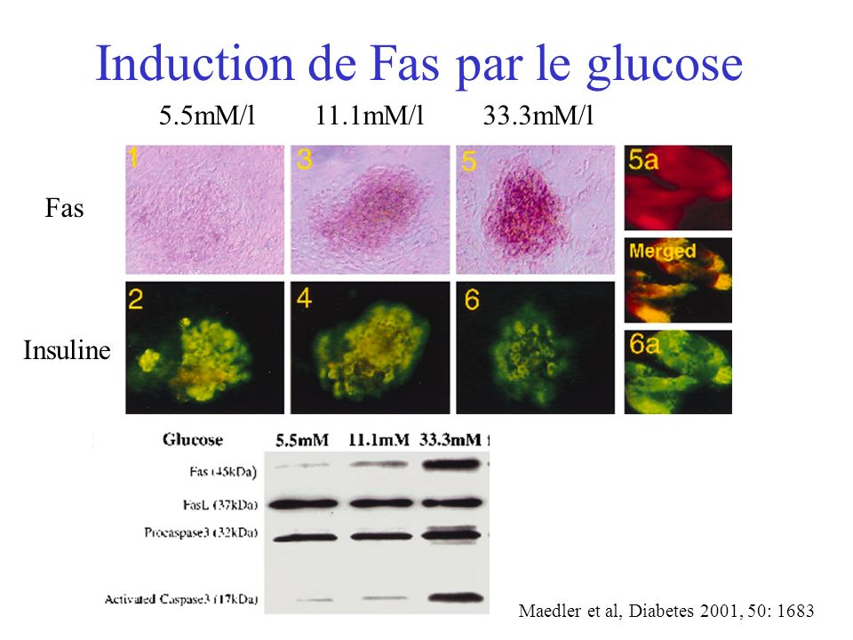 Induction de Fas par le glucose
