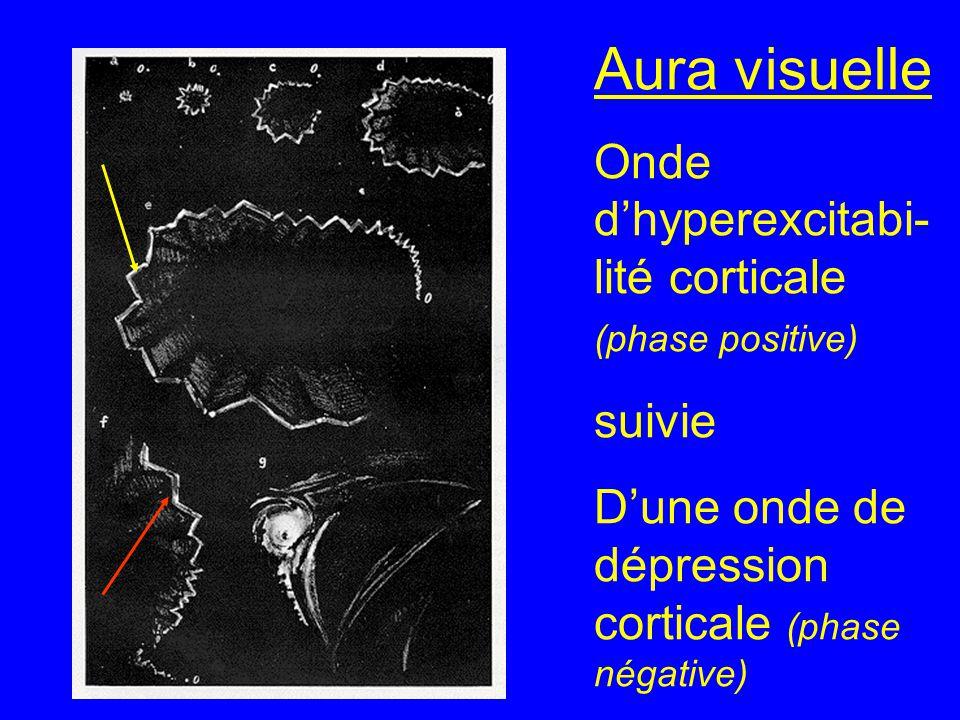 Aura visuelle Onde d'hyperexcitabi-lité corticale (phase positive)