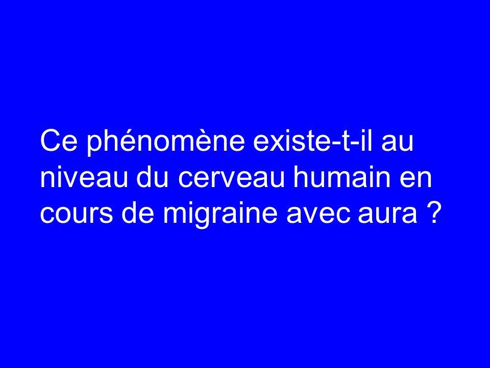Ce phénomène existe-t-il au niveau du cerveau humain en cours de migraine avec aura