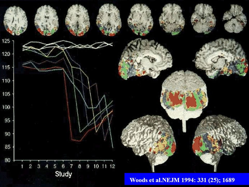 Woods et al.NEJM 1994: 331 (25); 1689
