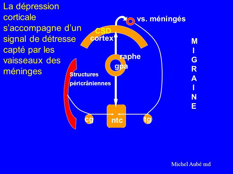 La dépression corticale s'accompagne d'un signal de détresse capté par les vaisseaux des méninges