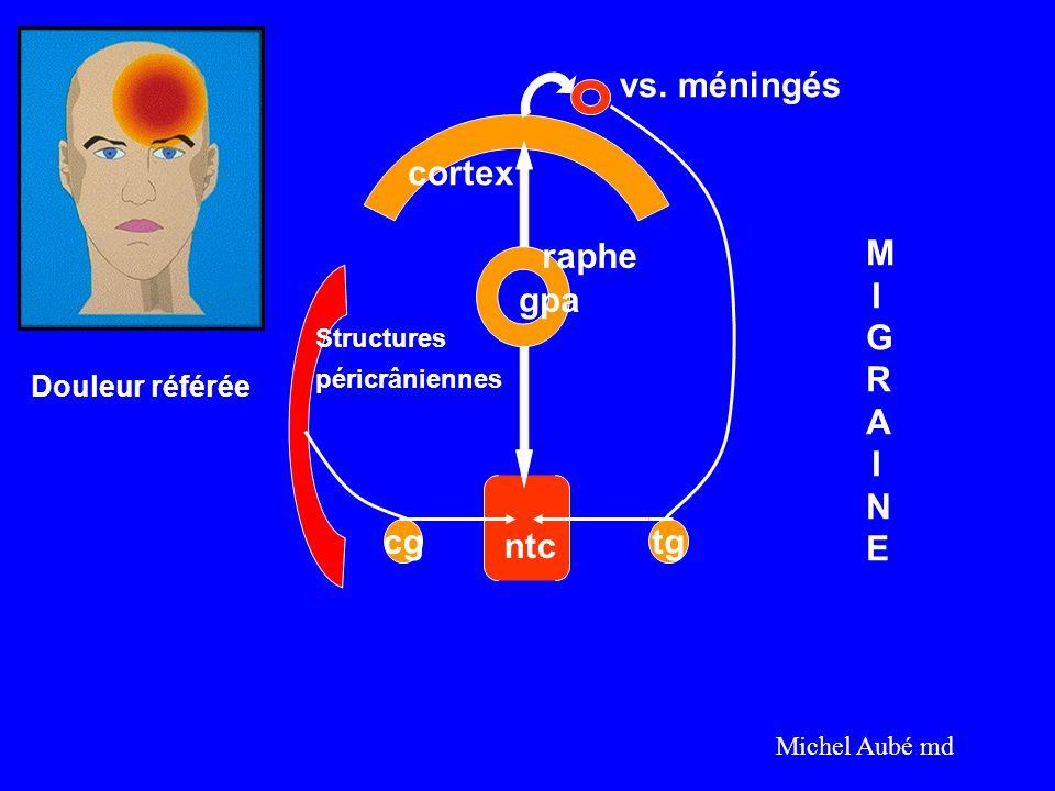 vs. méningés cortex raphe MIGRAINE gpa cg ntc tg Douleur référée
