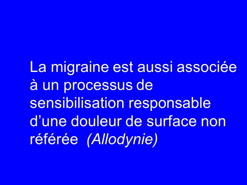 La migraine est aussi associée à un processus de sensibilisation responsable d'une douleur de surface non référée (Allodynie)