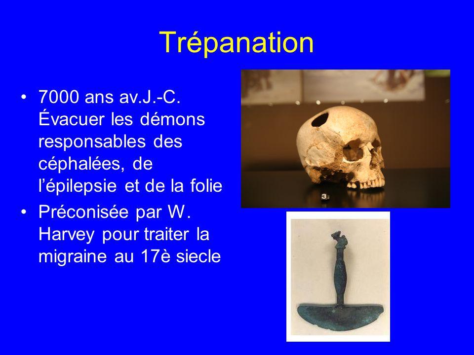 Trépanation 7000 ans av.J.-C. Évacuer les démons responsables des céphalées, de l'épilepsie et de la folie.