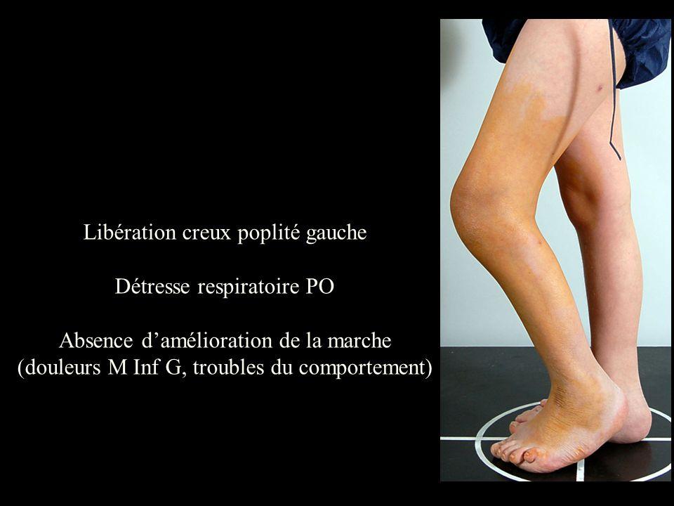 Libération creux poplité gauche Détresse respiratoire PO
